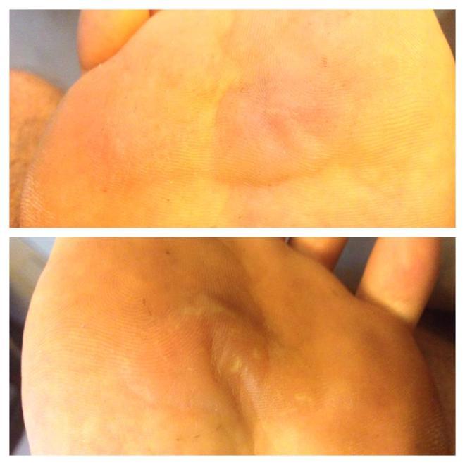 blisteres-feet