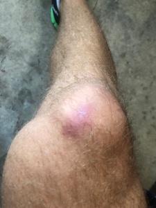 burpee-knee-bruise